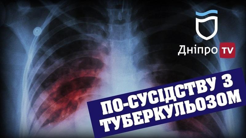 Чому обласна влада дозволяє вільно гуляти хворим на туберкульоз на Ігрені