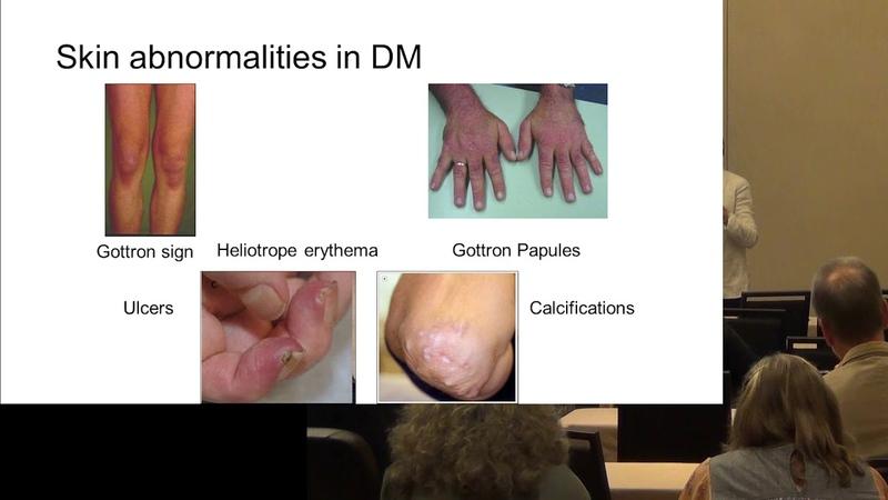 Diagnosing Myositis Marianne de Visser MD