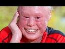 Девушка без кожи - Моя Ужасная История